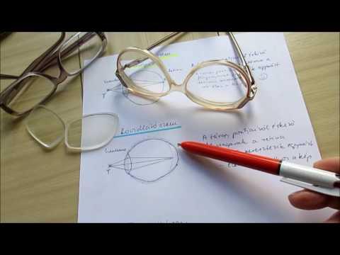rövidlátás kezelés gyakorlása videó)