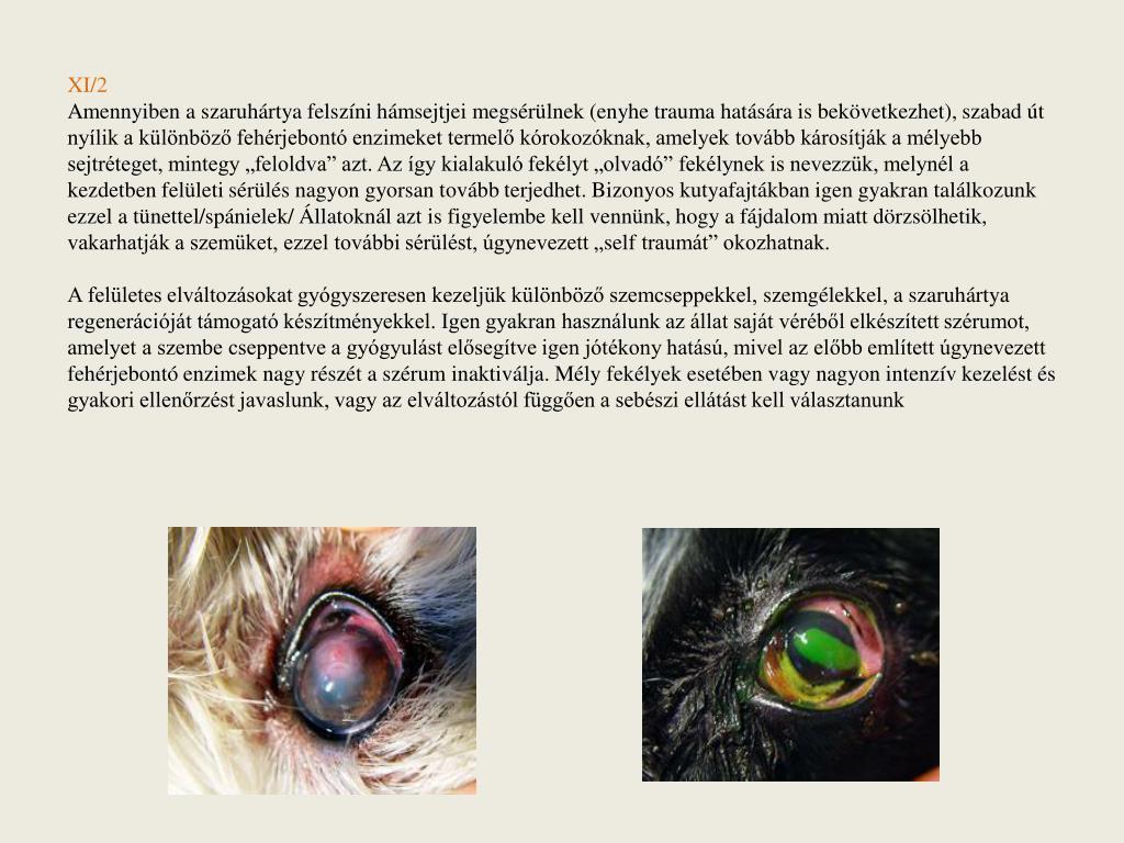 hogyan lehet szem elől téveszteni glaukómában)