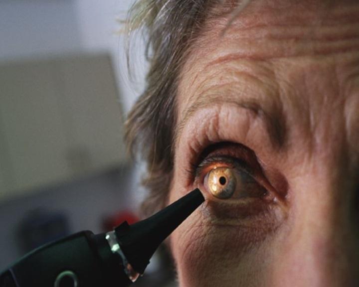 hogyan lehet javítani a látás fórumát