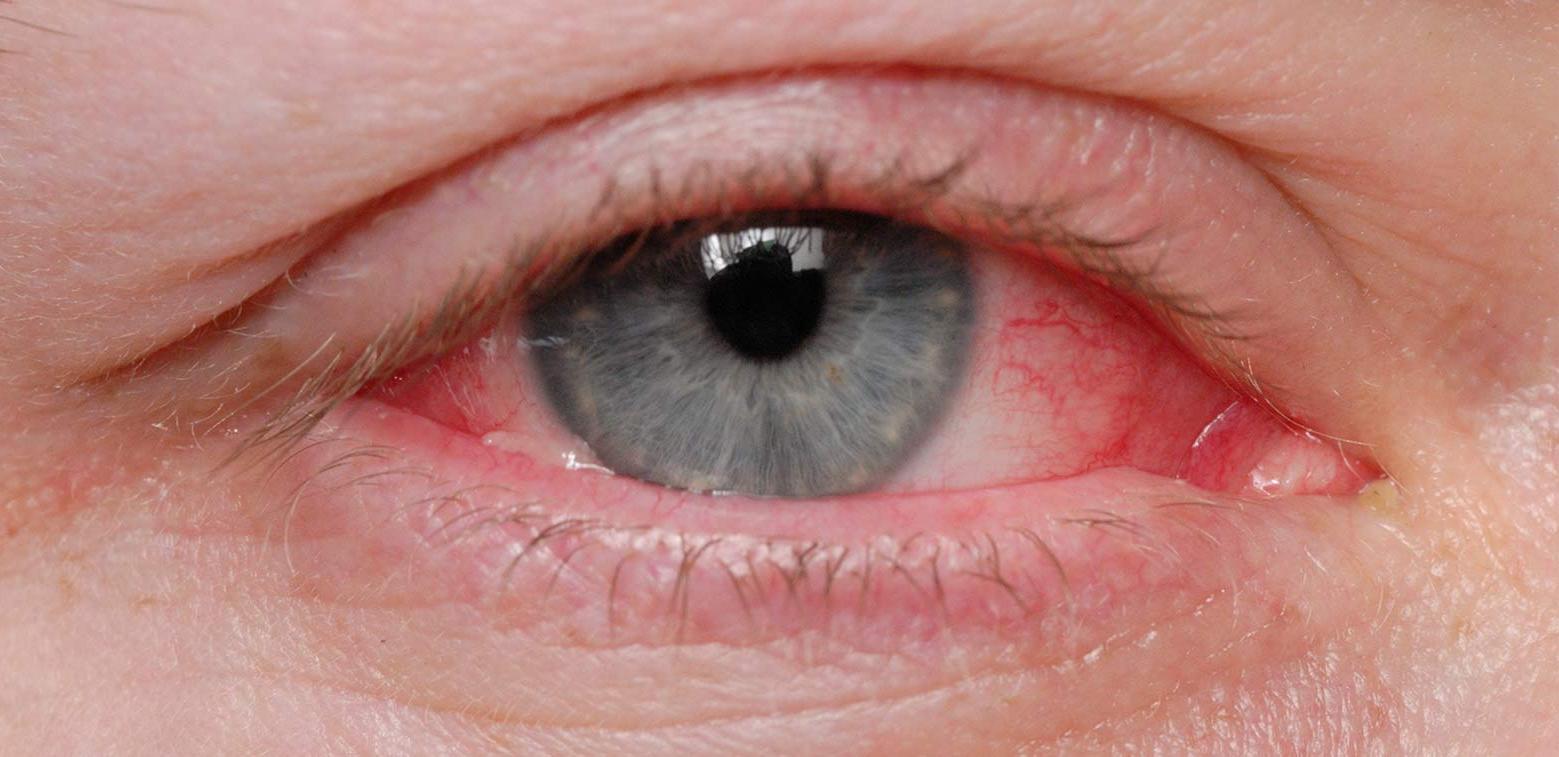 látás vírusos kötőhártya-gyulladás után