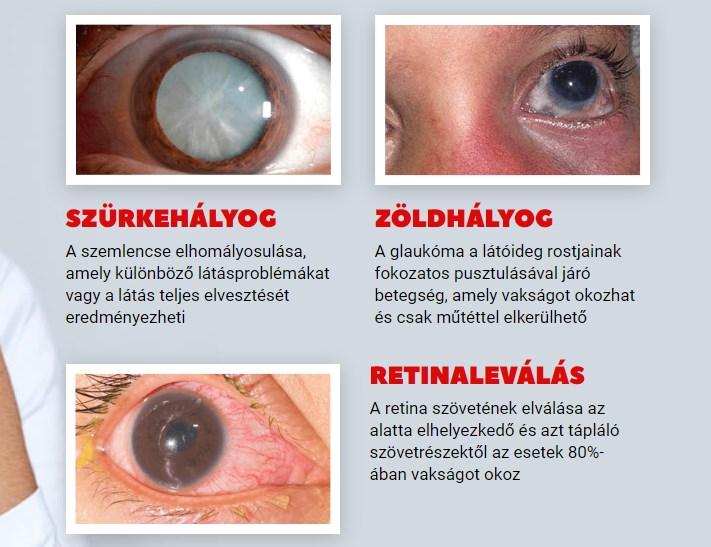 Program a látás javítására