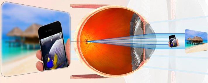 myopia alkalmasság)