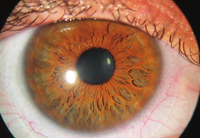 hogyan lehetne javítani a látást 10 évesen