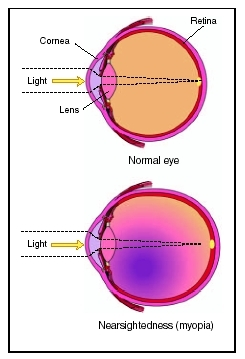 inzulin myopia