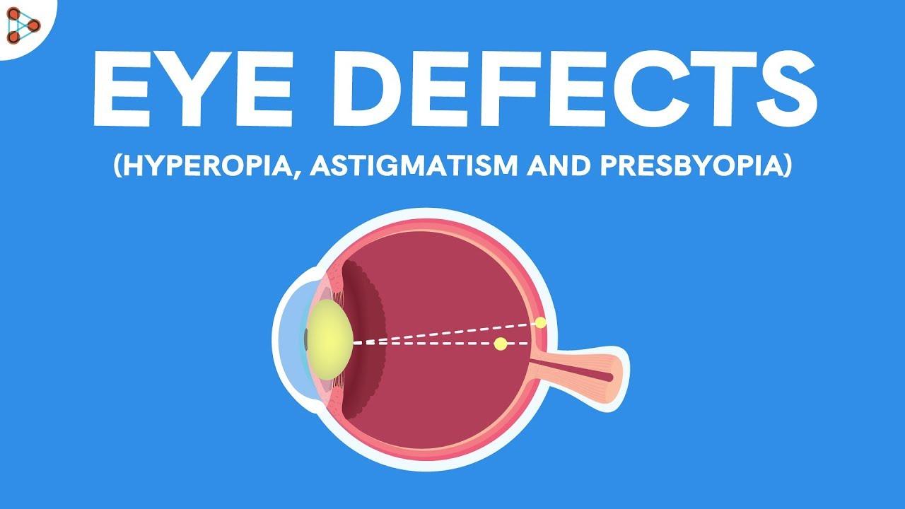 hyperopia myopia astigmatizmus