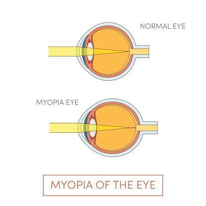 a myopia oka)