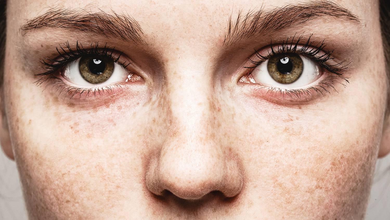 Hogyan javítható a látás szemüveg nélkül otthon? - Rövidlátás September