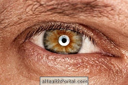 Helyreállított látás a vírusos keratitis után