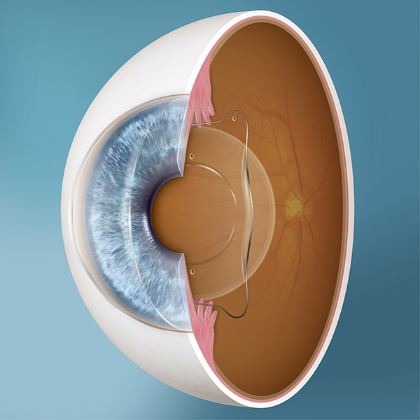 ami rosszabb a myopia vagy a hyperopia)