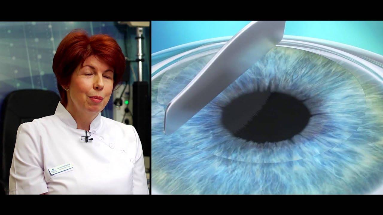 a szem torna rövidlátással)