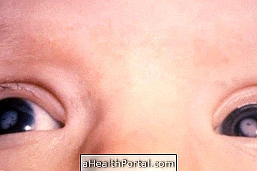 a látás helyreállítása veleszületett szürkehályogban