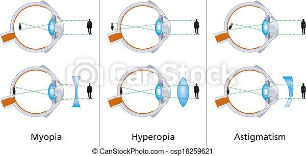 Baj van a szemünkkel? – Íme a leggyakoribb szemproblémák 1.rész - Napidoktor