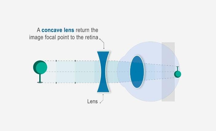 myopia myopia hogyan kell kezelni