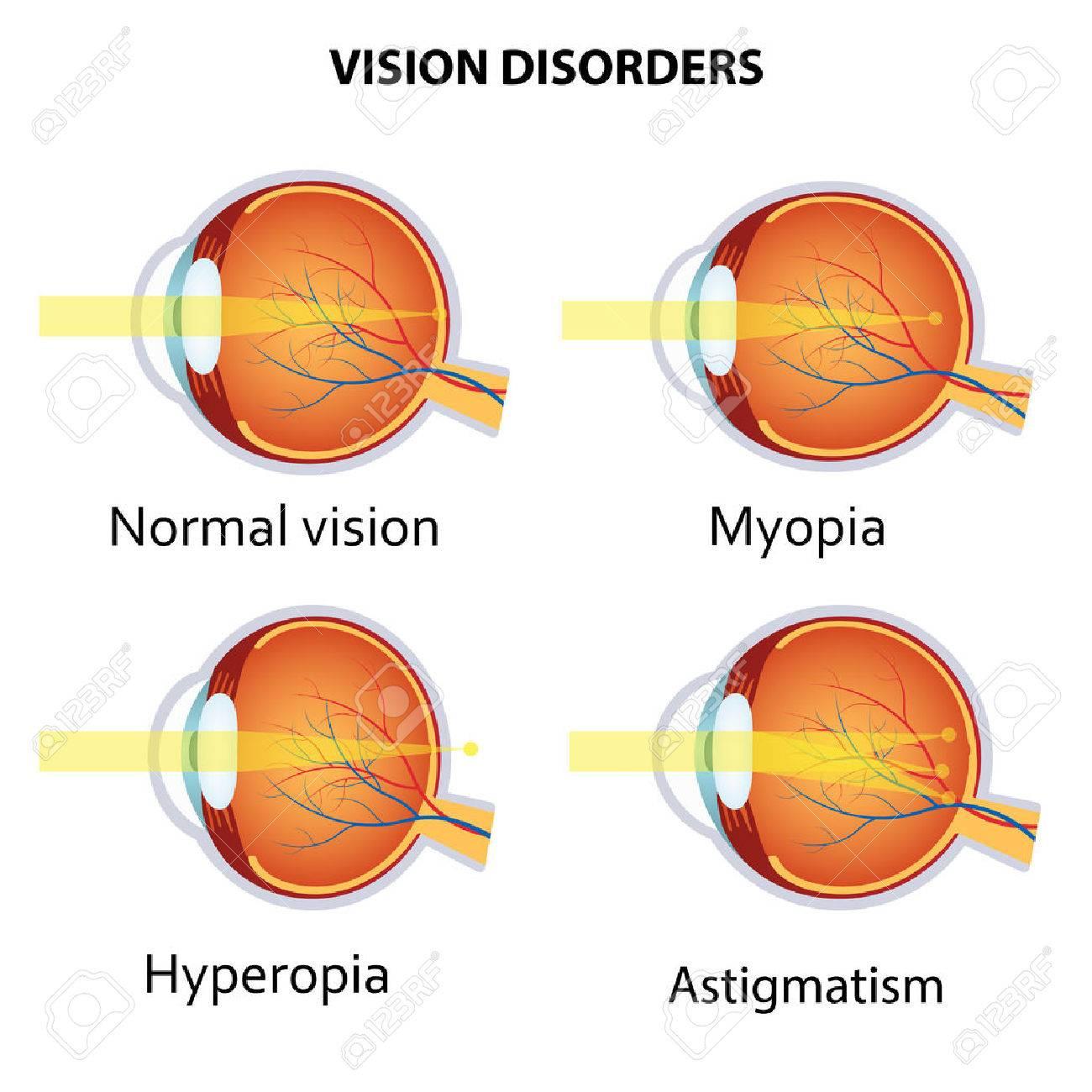 myopia myopia gyakorlat hogyan lehet visszaállítani a látást mínusz 25-ből