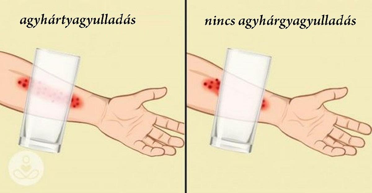 betegség tünetei: hányinger láz, nincs tiszta látás)