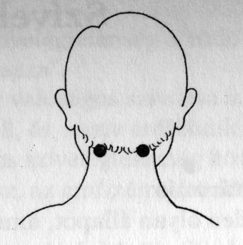 gyenge látás albínókban