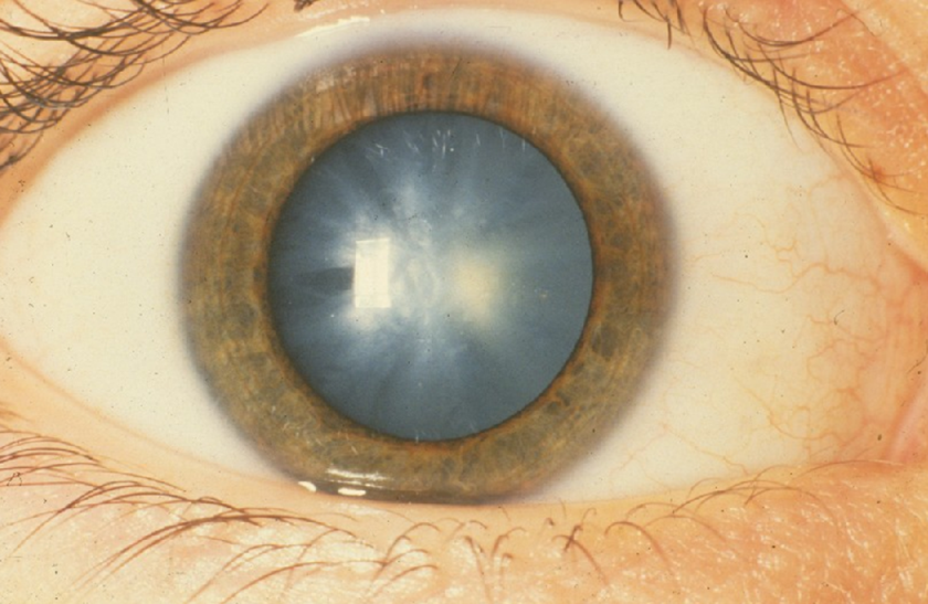 homályos látás a műtét után