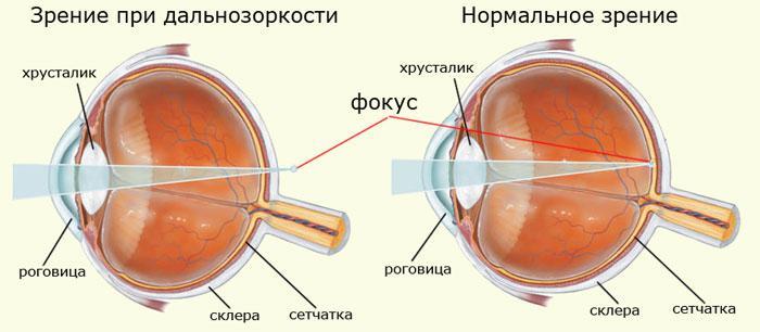Hyperopia okai, tünetei és kezelése (video)