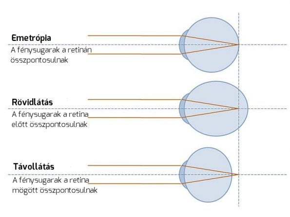 teljes látásvizsgálati táblázat súlyos myopiában szenvedő nők