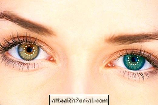 különböző látás a betegség szemében