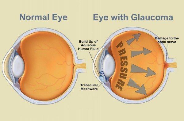 A zöld hályog (glaucoma) és tünetei