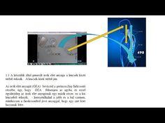 látás helyreállítása az összes videóhoz