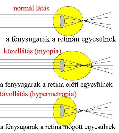 látás mínusz öt rövidlátás gyermekek látásvédő szobája