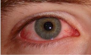 látás uveitis után A látás 40 százaléka mínusz mennyi