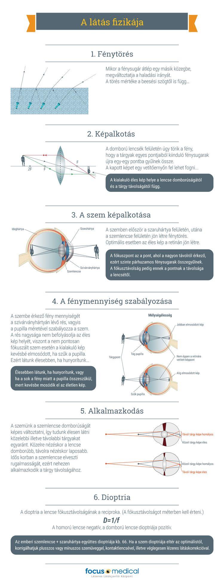 Keratoconus kezelése (CXL)