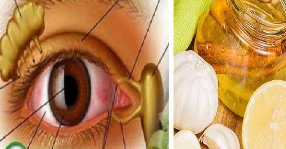 mit tett a látás helyreállítása érdekében