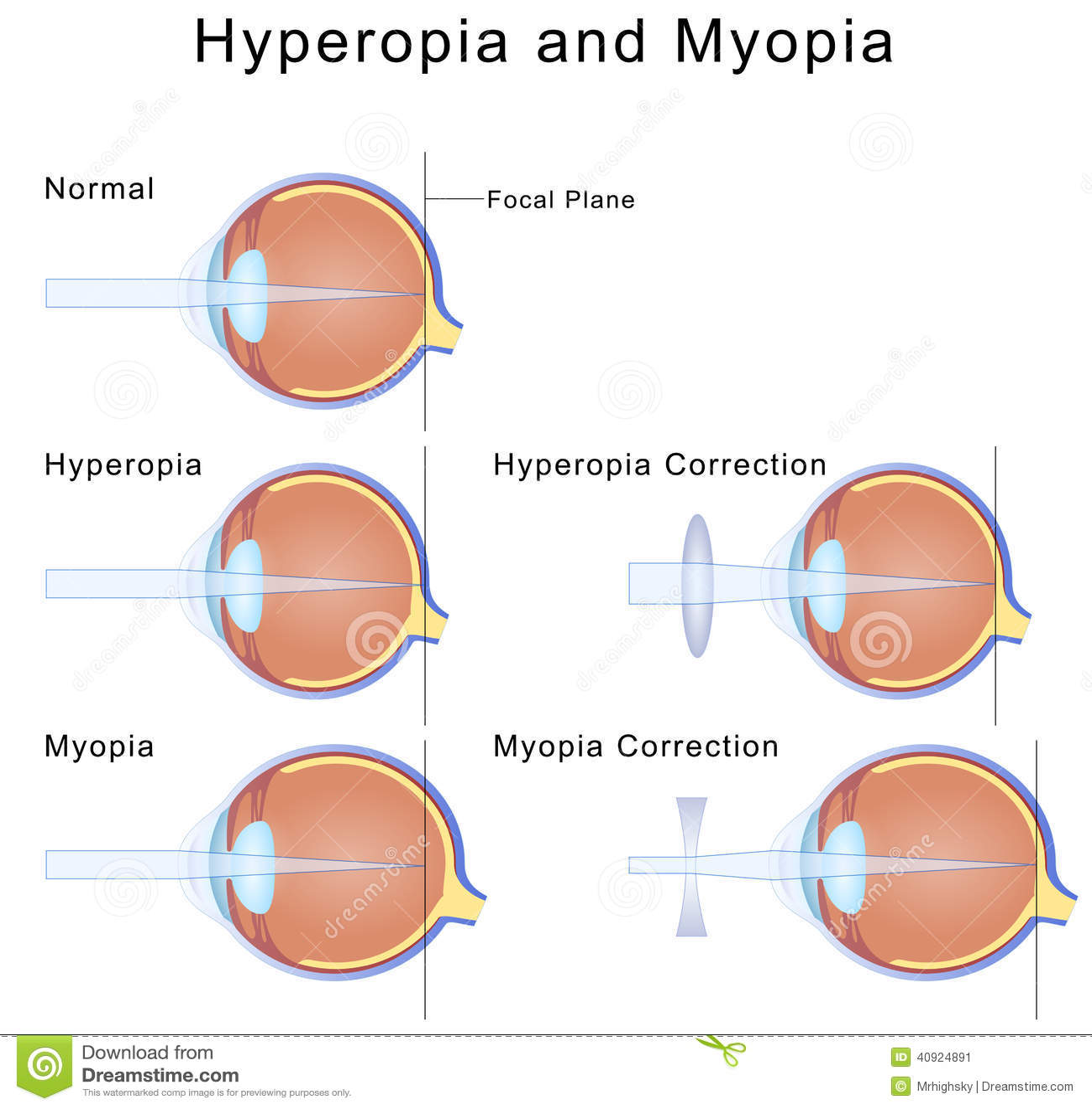Mi a myopia és a hyperopia - Szemüveg August