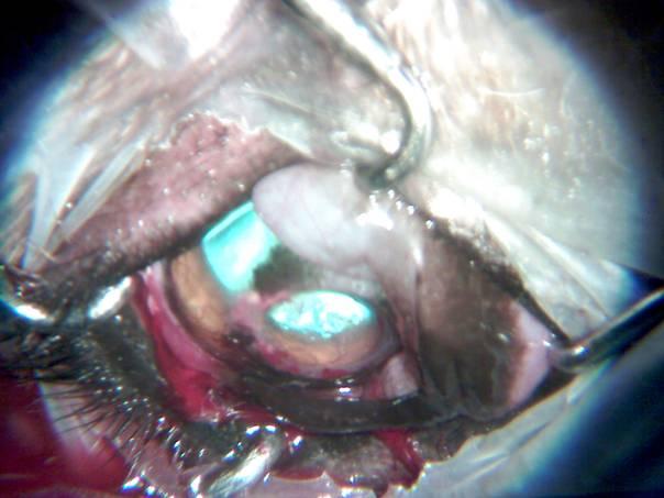 német szemészeti kezelés szaruhártya-átültetés nézőpontok összefüggése