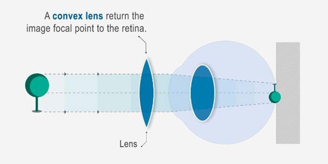 rövidlátás 1-nél hidroterápiás látás