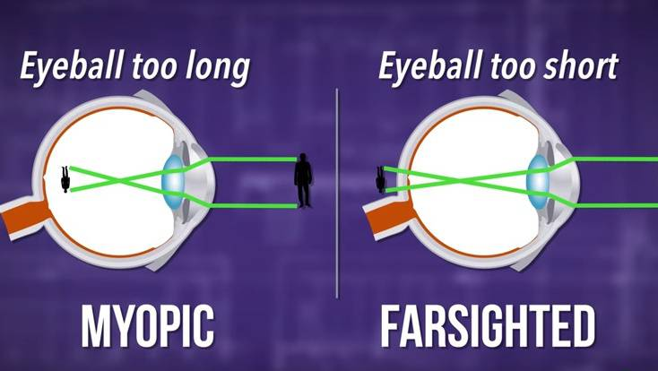 a látás helyreáll a műtét után ha a látás plusz 0 9