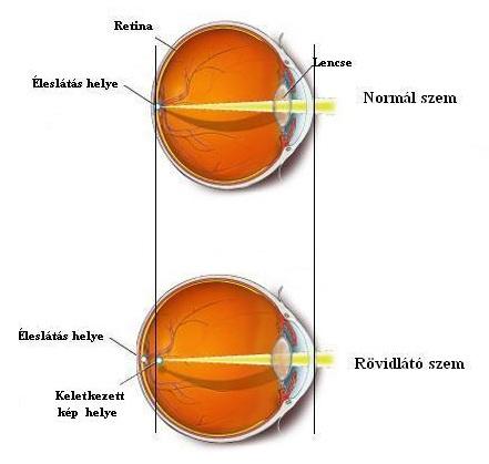 rövidlátás jelent meg az egyik szemében