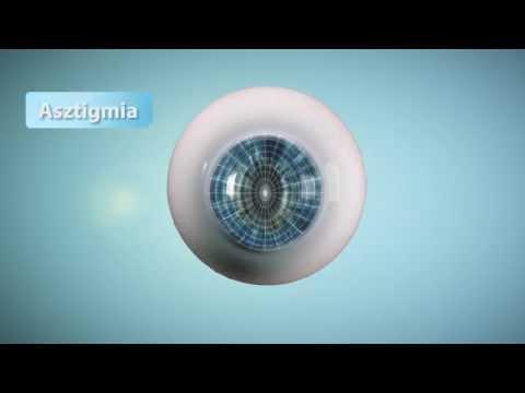 rövidlátás kezelésére szolgáló videó