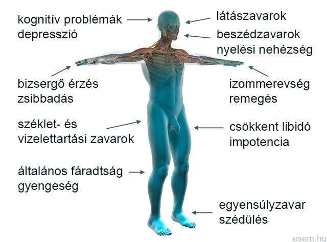 sclerosis multiplex kezelése látásvesztés