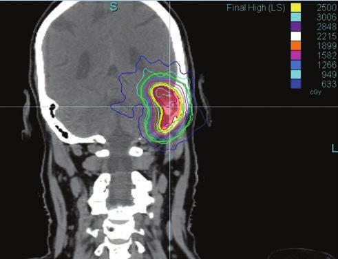 sugárkezelési vizsgálatok az ENT szervek szemészetében)