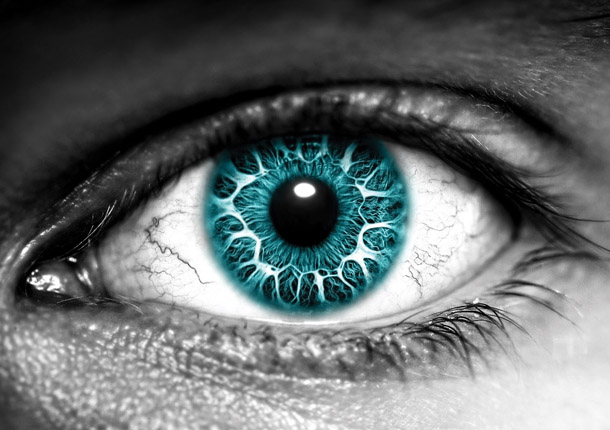 A kóros rövidlátás talaján kialakult súlyos látásromlás Magas fokú izometrikus myopia