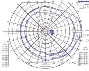a látás akupunktúrás javítása a látás helyreállítása Kerch