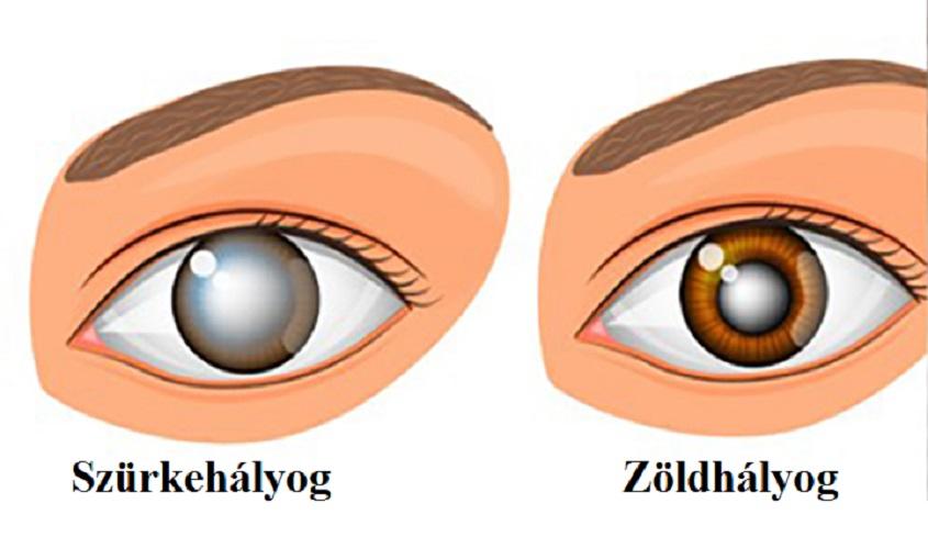 szürkehályog a látásról szól látás és prolaktin
