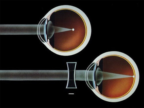 A rövidlátás, távollátás és az astigmia kezelése.