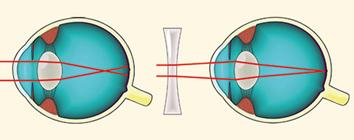 hogyan képződik a látás