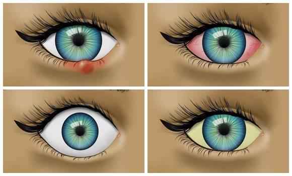 Az 5 leggyakoribb kérdés a gyermekek látászavaraival kapcsolatban.
